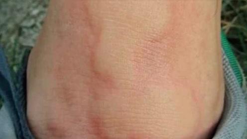 老人散步被蚂蚁咬伤抢救2小时:被红火蚁咬伤,处于濒死状态