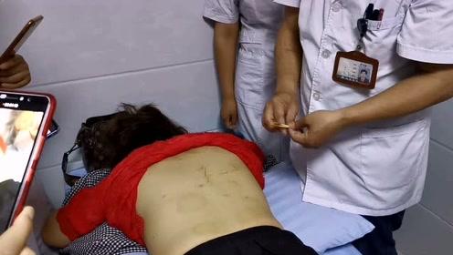 小关节紊乱引起胸背疼痛,针灸治疗关节紊乱胸背疼痛