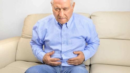 肝硬化患者身体有四种表现,别拖着赶紧去医院
