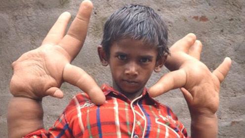 印度12岁男孩,长出30厘米巨大手掌,医学也无法解释!