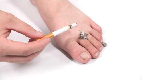 香烟灰抹在脚上太厉害了,没想到还有这个作用,看完你会感谢我
