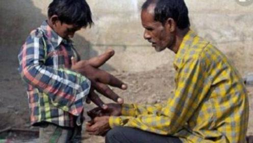 """印度被""""诅咒""""的男孩:刚满12岁就长出30厘米的超级巨手"""