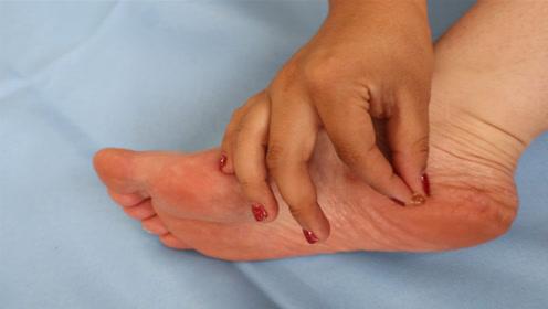 抓紧在脚上涂抹一粒维生素e,男女的难题立马解决了,后悔才知道