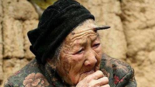 """百岁老人头上无故长出8厘米""""牛角"""",检查结果却让医生傻眼了"""