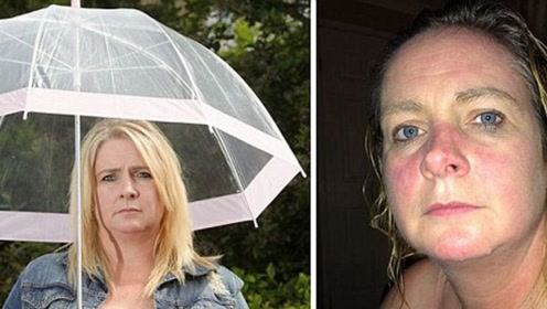 英国女子天生对水过敏,27年不曾洗澡,网友:心疼丈夫!