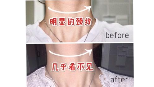 消除颈纹要趁早!去除颈纹年轻十岁,还能缓解肩颈不适