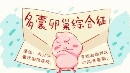 患上多囊卵巢综合征的4大表现,只要发现一个,请立即去医院!