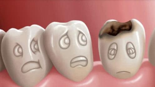 牙齿为什么会变黑,真的是虫子在作祟?专家出答案,让人难以相信