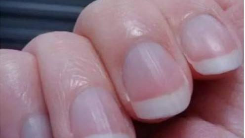 """手指指甲出现""""竖纹"""",是身体出问题了吗?终于有医生给出真相"""