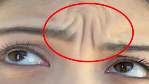 """眉毛中间的""""川字纹""""注意了!这种人天生命运多舛?看看有没有你"""
