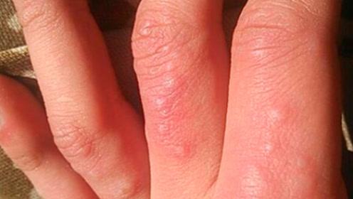 手指上经常长透明的小泡,而且特别痒,是怎么回事?