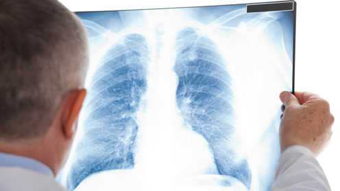 检查发现肺部有结节怎么办?不要惊慌,听听专家怎么说