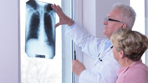 人只有一个肺,肺若不好,可从身体4个地方看出来,瞒不住