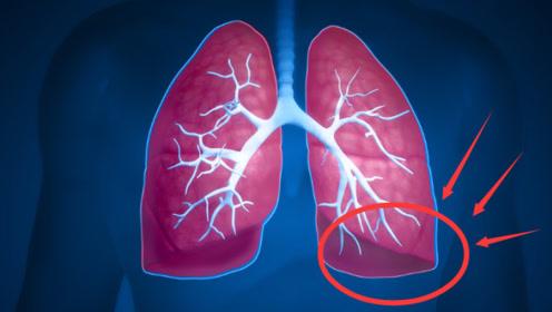 """老中医:天然的""""清肺王""""找到了,每天坚持吃,支气管炎远离你!"""