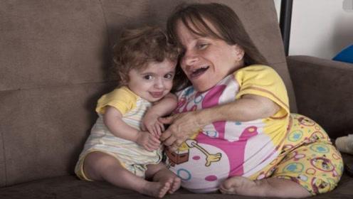 """世界上最矮小的""""母亲"""",3年来连生3个孩子,结局让人泪目!"""