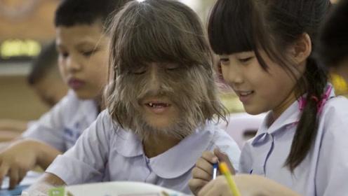 16岁小女孩,喝了受污染的奶粉后,毛发覆盖满脸成了狼人!
