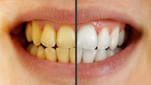 """牙齿上有难闻的""""黄泥""""不要抠,教你4招,牙垢自己掉下来!"""