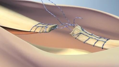 断筋是怎样被接起来的?老外用3d动画展示全过程,看完不服不行