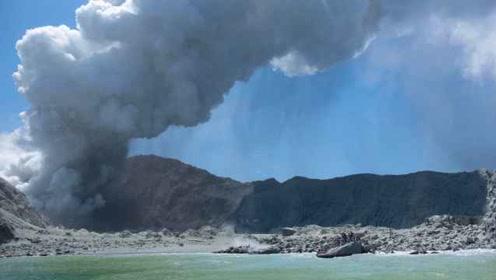 新西兰向美订购120万平方厘米皮肤,用于治疗火山烧伤患者