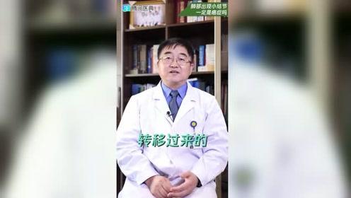 肺部小结节就是肺癌吗?别乱猜了!90%的肺小结节都是良性的