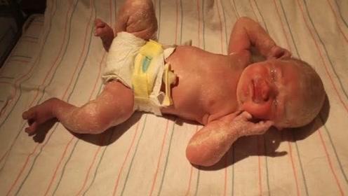 护士给刚刚出生的小宝宝按脚印,哭的心都化了