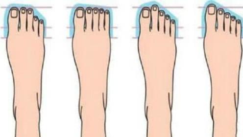 脚趾看人生!这三个特征注定贵气十足,越老越享福,看看有你吗?