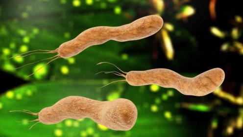 感染了幽门螺杆菌,会有哪些异常表现?