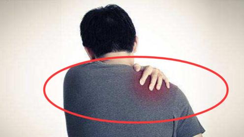 肩膀出现这种痛感,警惕是癌症早期症状