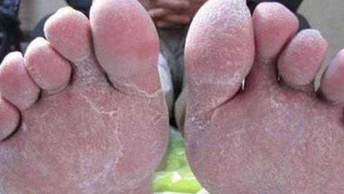 患有脚气不要用手抠!教你这个小方法,轻松治疗脚气,快告诉家人
