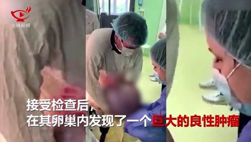 俄罗斯一妇人腹部长50斤重巨型肿瘤,医生双手环抱吃力取出