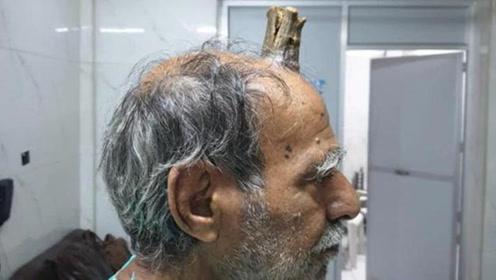 """印度男子头部受伤长出""""牛角"""" 5年后终成功切除"""