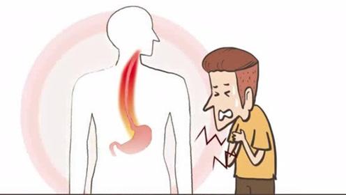 碰上胃食道逆流,该怎么办?