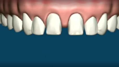 牙齿之间空隙太大怎么办?看完找到解决办法了!还不快学学