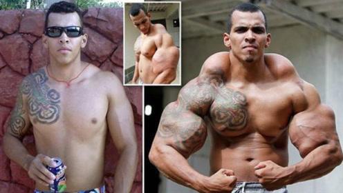 巴西绿巨人肌肉逆天!注射大量石油燃料增肌,臂围高达60厘米!