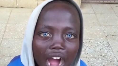 黑人男孩拥有澄澈的蓝眼睛,却被称为不祥之人,检查后真相大白!