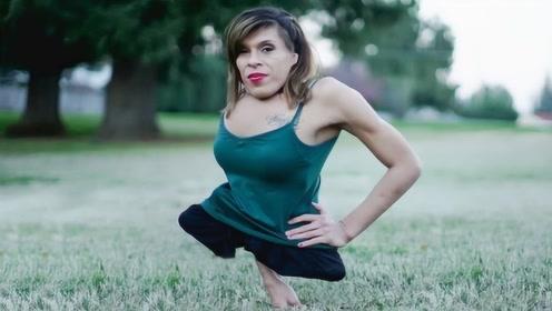 天生没有双脚的女孩,遭父母抛弃,如今成女模特日赚1000美元