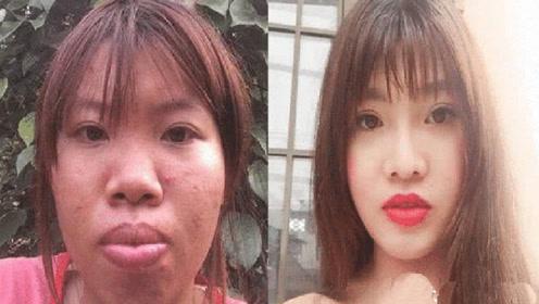 整容和不整容的人,老了之后脸上有什么区别?看完难以置信!