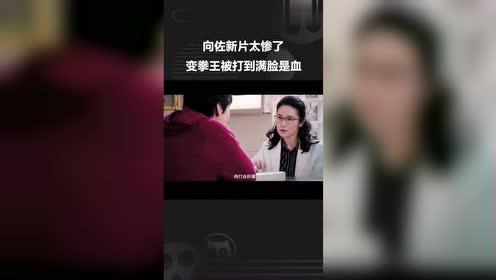 《我的拳王男友》新片预告,拳王向佐太惨了,被打到满脸是血