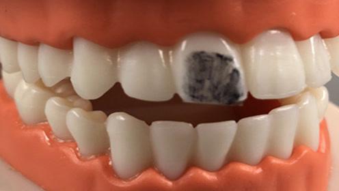 牙齿发黄越刷越臭?教你简单的刷牙方法,多脏的牙齿都能越刷越白
