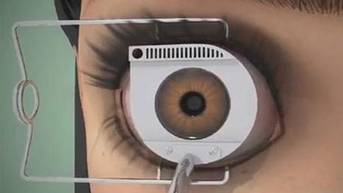 曾经做激光手术治疗近视的人,现在都后悔了吗?