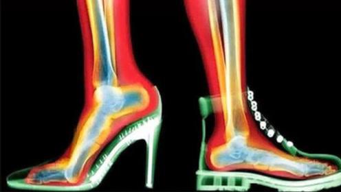 女性长期穿高跟鞋,身体会发生啥变化?看完背脊一凉!