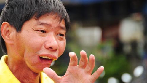 """连续吃5年槟榔会发生什么?湖南小伙被""""割""""了半张脸,说出来你都不敢信"""