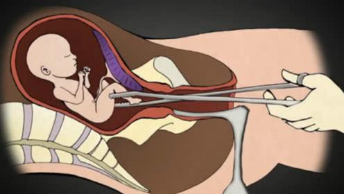 """人流手术中,胎儿的""""最后时刻""""会经历什么?动画演示全过程,看完心酸不已"""