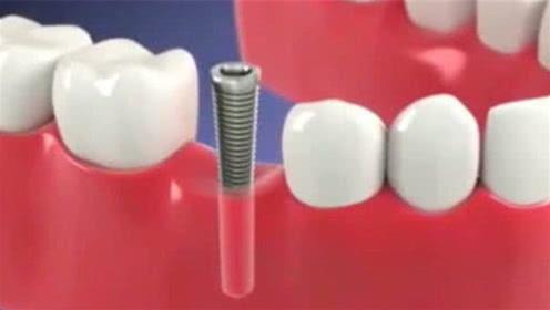 医生是如何种植假牙的?3D动画模拟全过程,看完直呼过瘾!