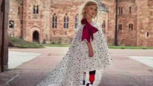 9岁小模特登纽约时装周,一双独特美腿成焦点,女孩:不认命,就是我的命!