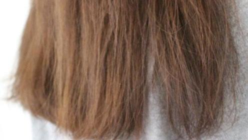 不要长白发就用染发膏, 日常中坚持这几点,让你轻松白发变乌发