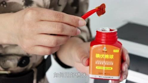 碘伏消毒要注意什么问题?日常皮肤消毒需谨慎,4点安全很重要