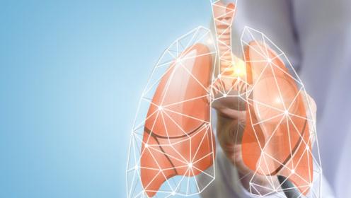 提醒:3信号在暗示肺癌,并非感冒气管炎,是指哪3个信号?