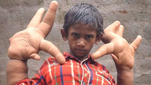 印度一小男孩天生巨掌,手掌一天比一天大,被称为魔鬼的孩子!