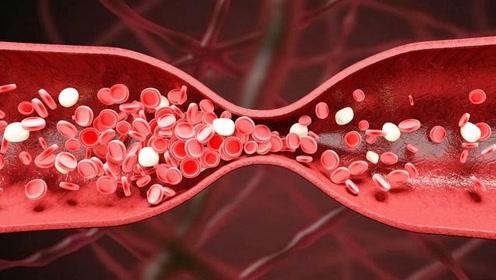 吃素就能远离高血脂?医生告诫:关于高血脂的饮食谣言,切勿听信